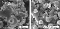 The structure of plasma-dusted coatings based on magnesium-substituted hydroxyapatite and calcium phosphate